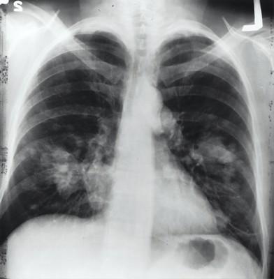 radiologie poumons