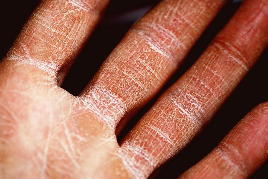 peau de la main abimée