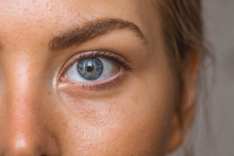 peau acnéique d'une femme