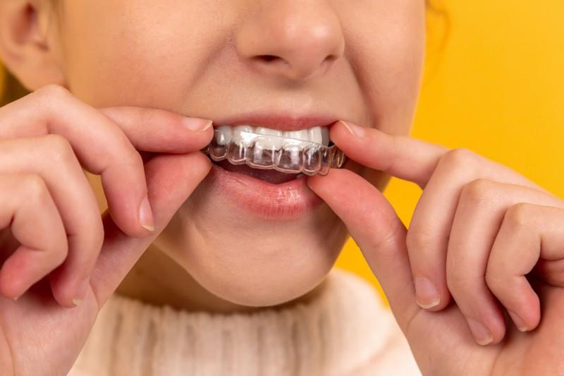 fille qui met une gouttière dentaire