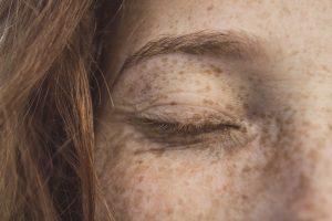 œil fermé d'une femme rousse à la peau sensible